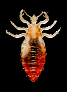 Head Louse, or Pediculus humanus capitis by Dr. Dennis D. Juranek of the CDC