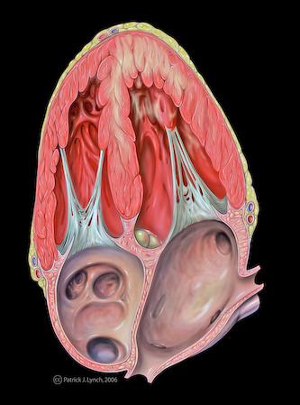 Heart with Anterior Wall Dysfunction, image by Patrick J. Lynch